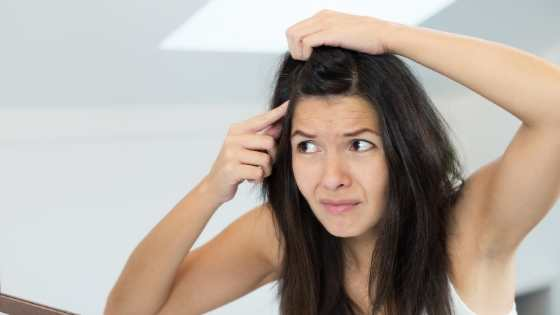 Get Rid of Dandruff Permanently Through Natural Home Remedies